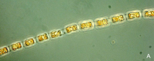 Images of Skeletonema costatum phytoplankton sampled from Moreton Bay